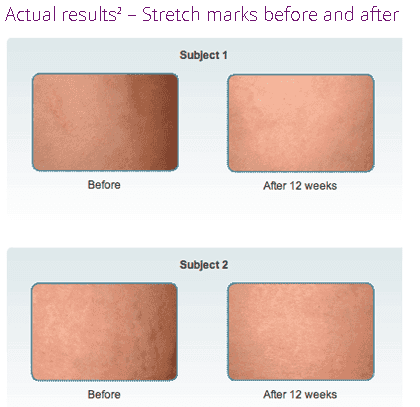 Mederma Stretch Mark Cream Before and After