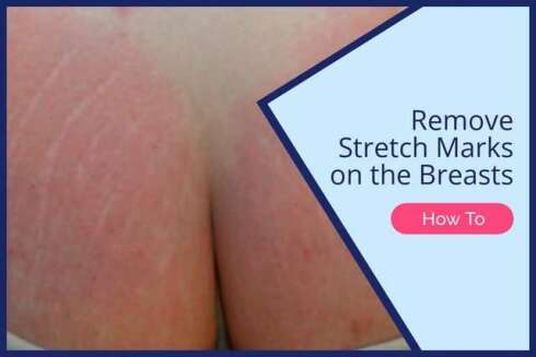 Do Red Stretch Markss Fade After Pregnancy