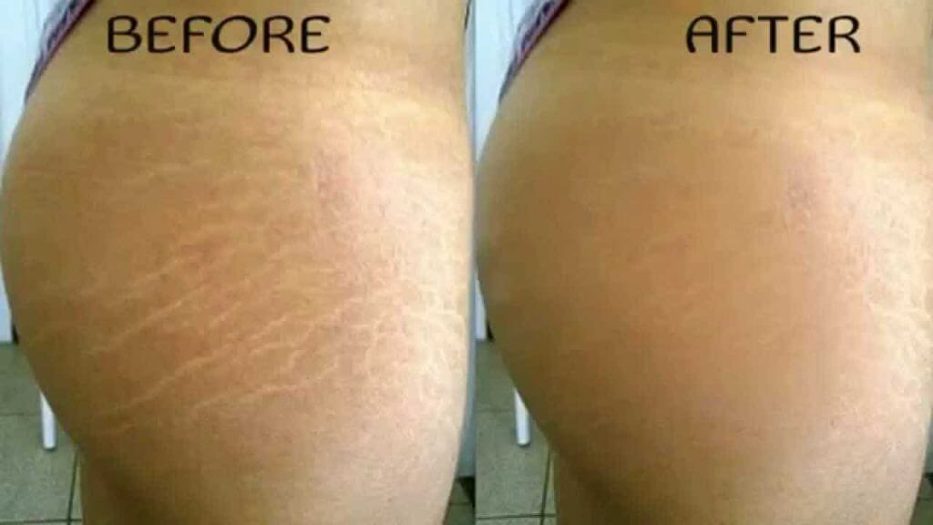 Old Stretch Mark Removal