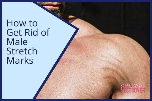 How to Get Rid of Male Stretch Marks